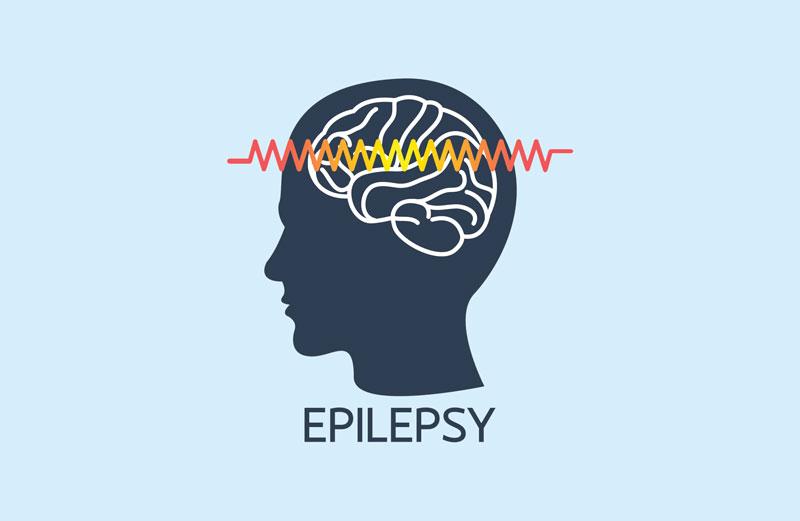 Epilepsiya zamanı ilkin yardım